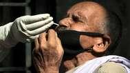 കോവിഡ്: കണ്ണൂരില് ചികിത്സയിലുളളത് 5344 പേര്, ഇതുവരെ രോഗം ബാധിച്ചത് 22048 പേര്ക്ക്